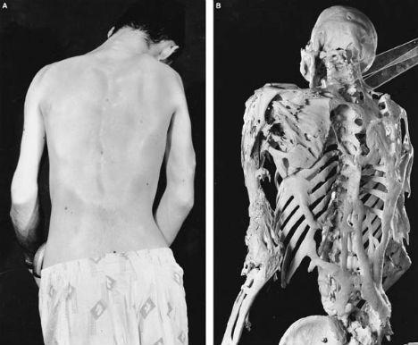 weird-diseases-fibrodysplasia