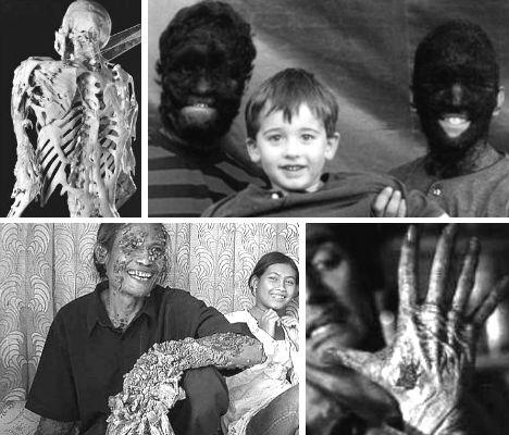 World's 15 Weirdest Diseases & Medical Conditions