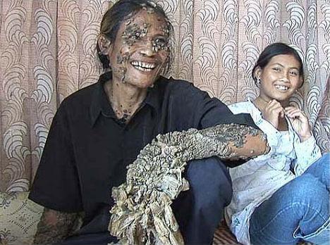 weird-diseases-tree-man